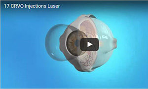 CRVO Injections Laser 300 wide