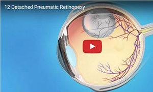 Detached Pneumatic Retinopexy 300 wide