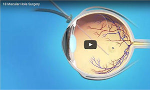 Macular Hole Surgery 300 wide