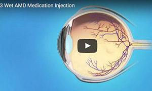Wet AMD Medication Injection 300 pixels